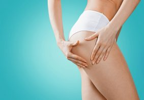3 cellulite treatments that really work!