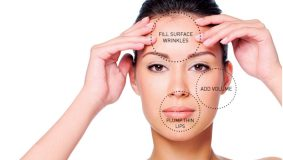 What are the different kinds of fillers?