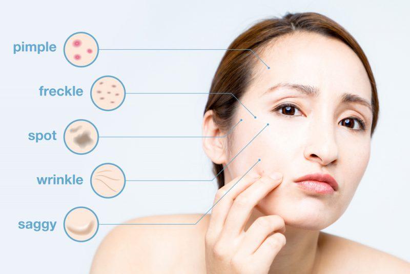 dermatologist in Manila